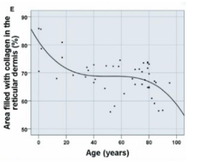age decrease